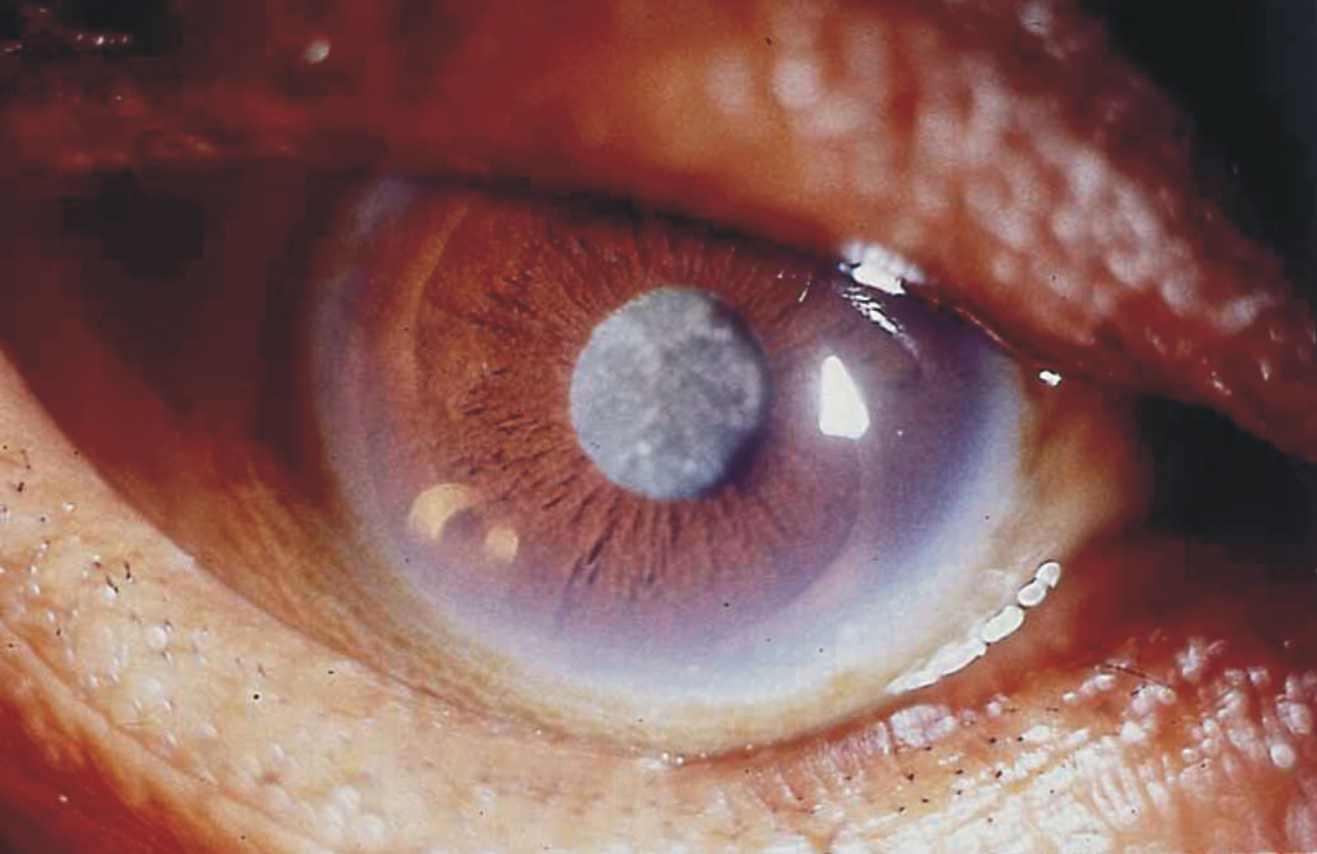 ojo-enfermedad-examen-vista